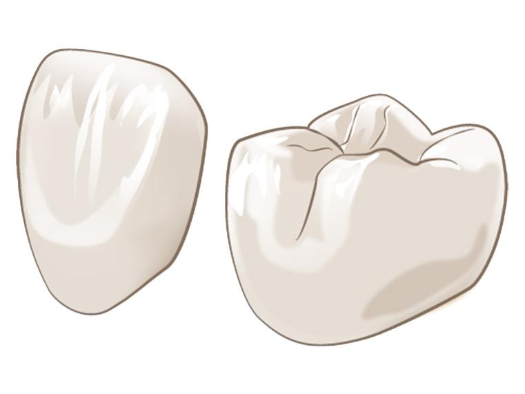 横浜日吉おおとう歯科 審美歯科 ジルコニアセラミック