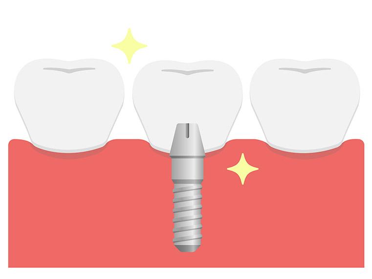 横浜日吉おおとう歯科 インプラント